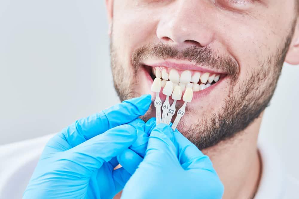 Koliko čovjek ima zubi